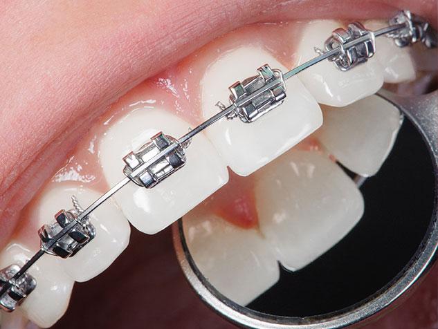 close up of metal braces