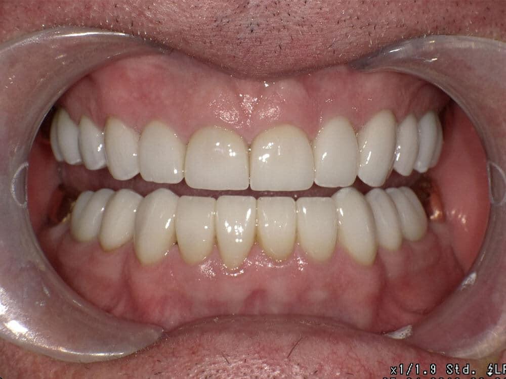 Patient 1, after image