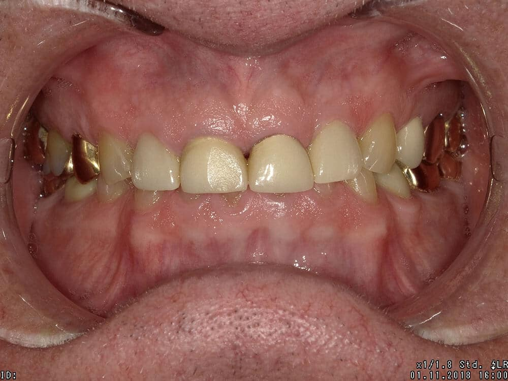 Patient 1, before image, yellow teeth, gold crowns in back, front top teeth completely cover worn down bottom teeth
