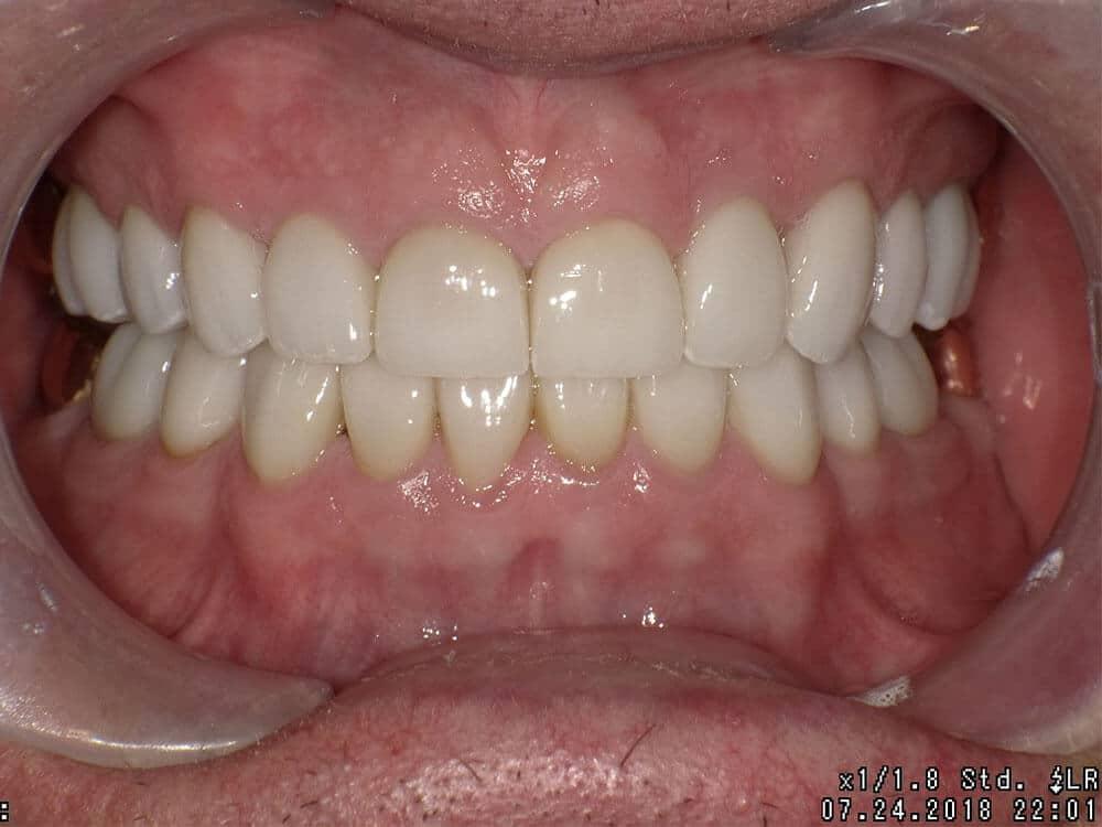 Patient 1 after image