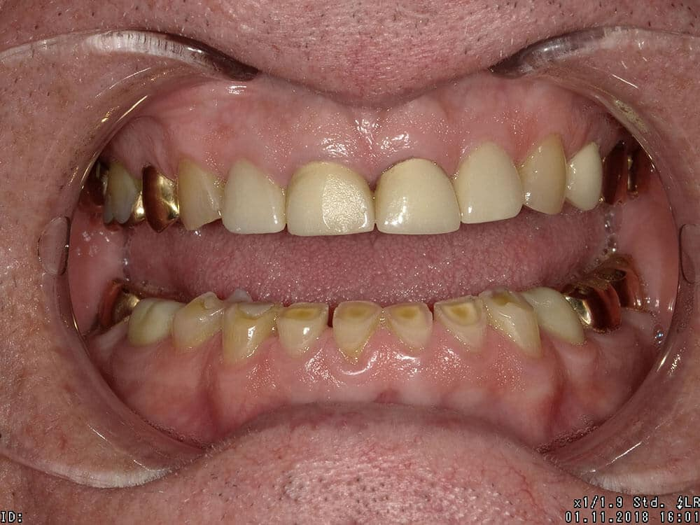 Patient 1, before image, yellow severely worn down teeth, gold crowns in back