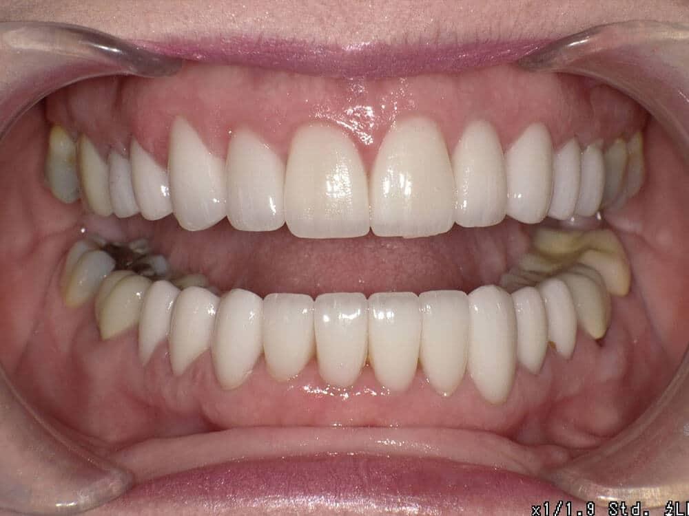 Patient 2, after image