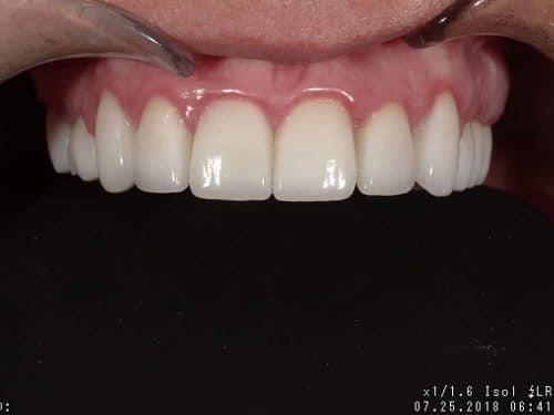 Patient 3, after image