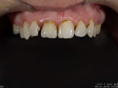 Patient 3, before image, worn, decayed, stained teeth
