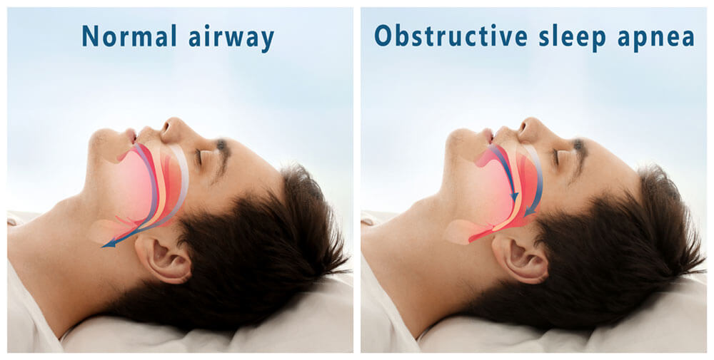Normal airway vs. Obstructive sleep apnea