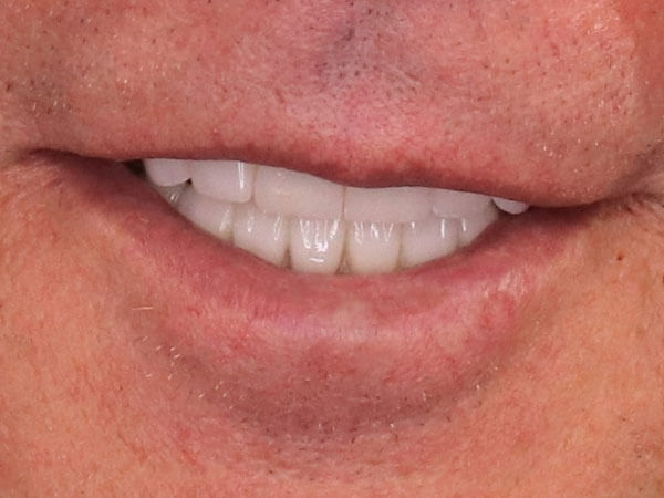 after picture of a man's corrected and whitened smile