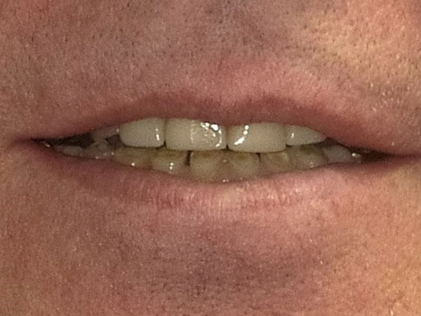 before picture of a man's small and yellowed teeth
