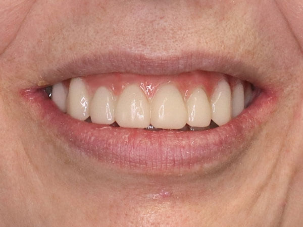 after picture of a woman's corrected smile