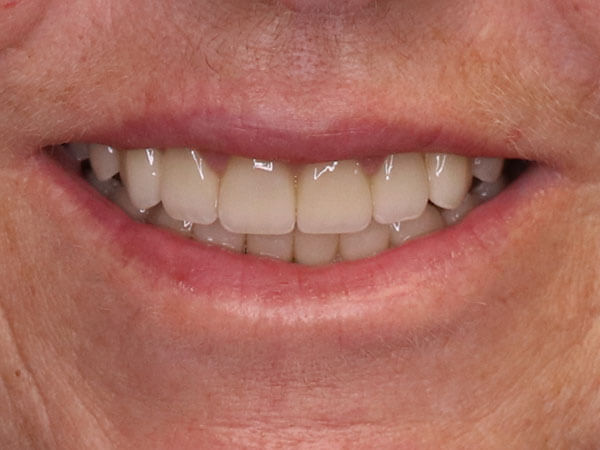 after picture of a woman's corrected and whitened smile
