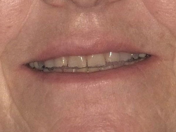 before picture of a woman's misshaped teeth