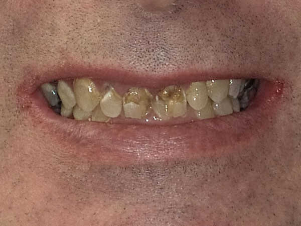 before picture of a man's severely decayed and damaged teeth