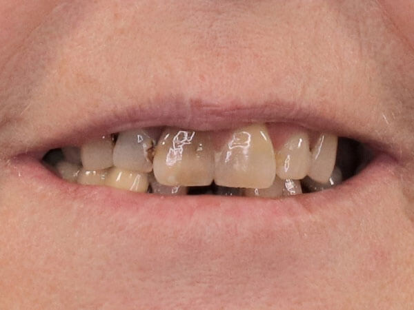 before picture of a woman's decayed and yellowed smile