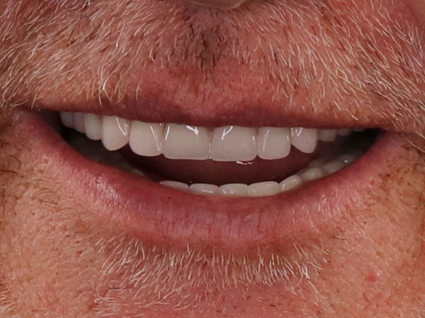 after picture of a smiling man with facial hair