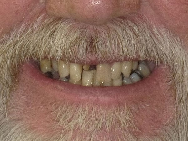 before picture of man with facial hair and damaged teeth