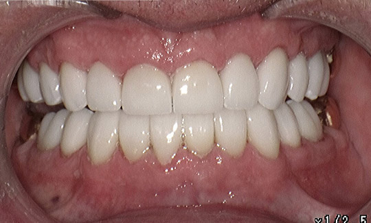 after picture of a man's smile whitened and perfected