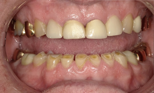 before picture of a man's smile yellowed and misshaped