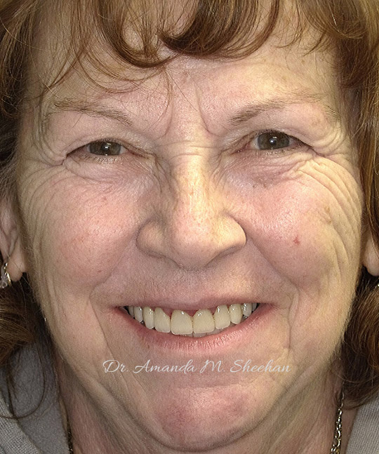 after picture of an older woman smiling