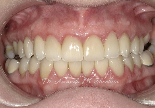 after picture of a man's whitened teeth