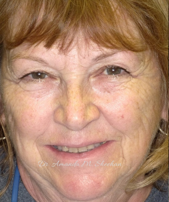 before picture of an older woman smiling