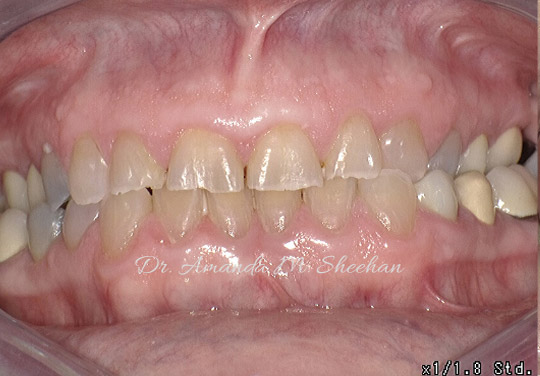 before picture of a man's small-shaped teeth