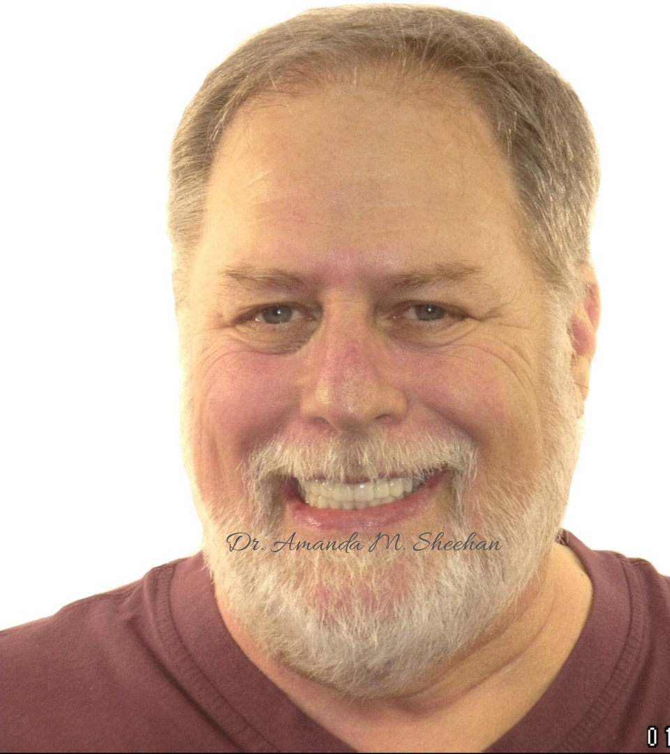 after picture of a smiling man with a beard