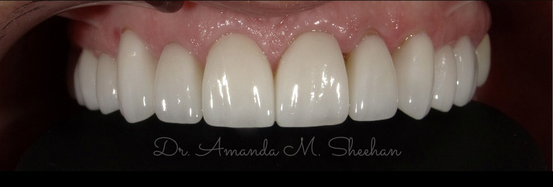 after picture of a patient's whitened and corrected arch of teeth