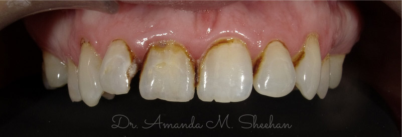before picture of a patient's decayed and yellowed arch of teeth