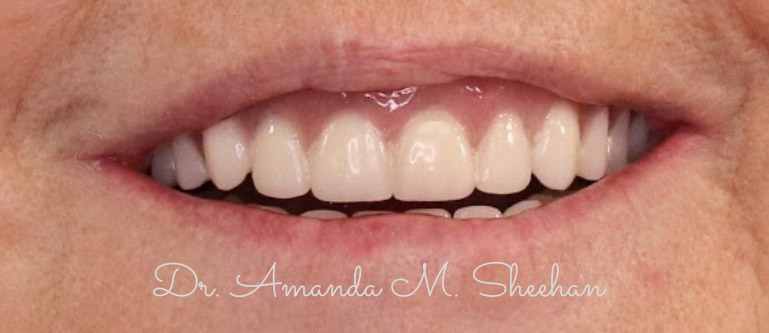 after picture of a woman's whitened and corrected smile