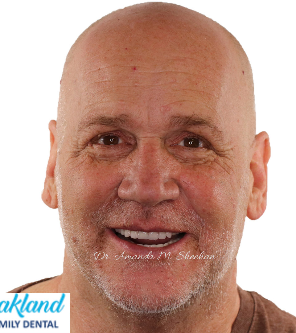 after picture of a smiling bald man