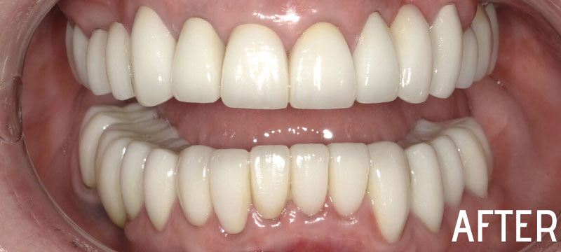 after picture of a man's whitened smile
